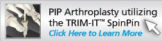 PIP Arthroplasty utilizing the TRIM-IT SpinPin